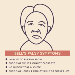 Bell's palsy and cannabis